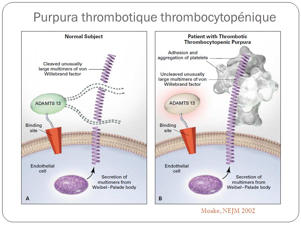 Purpura thrombotique thrombocytopénique Moake, NEJM 2002