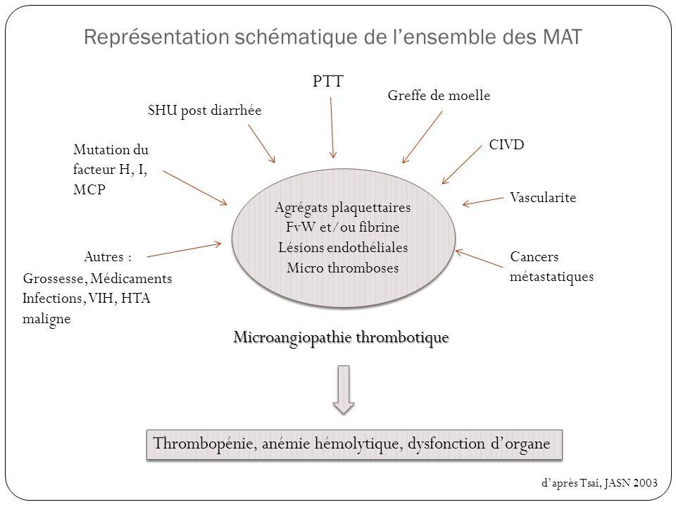 Purpura thrombotique thrombocytopénique une MAT doit être systématiquement évoqué devant : Anémie hémolytique mécanique : Haptoglobine effondrée, LDH élevés, hyperbilirubinémie, schizocytes, test de coombs négatif, réticulocytes augmentés Thrombopénie périphérique Défaillance dorgane le plus souvent neurologique et/ou rénale Coppo, EMC hématologie 2005