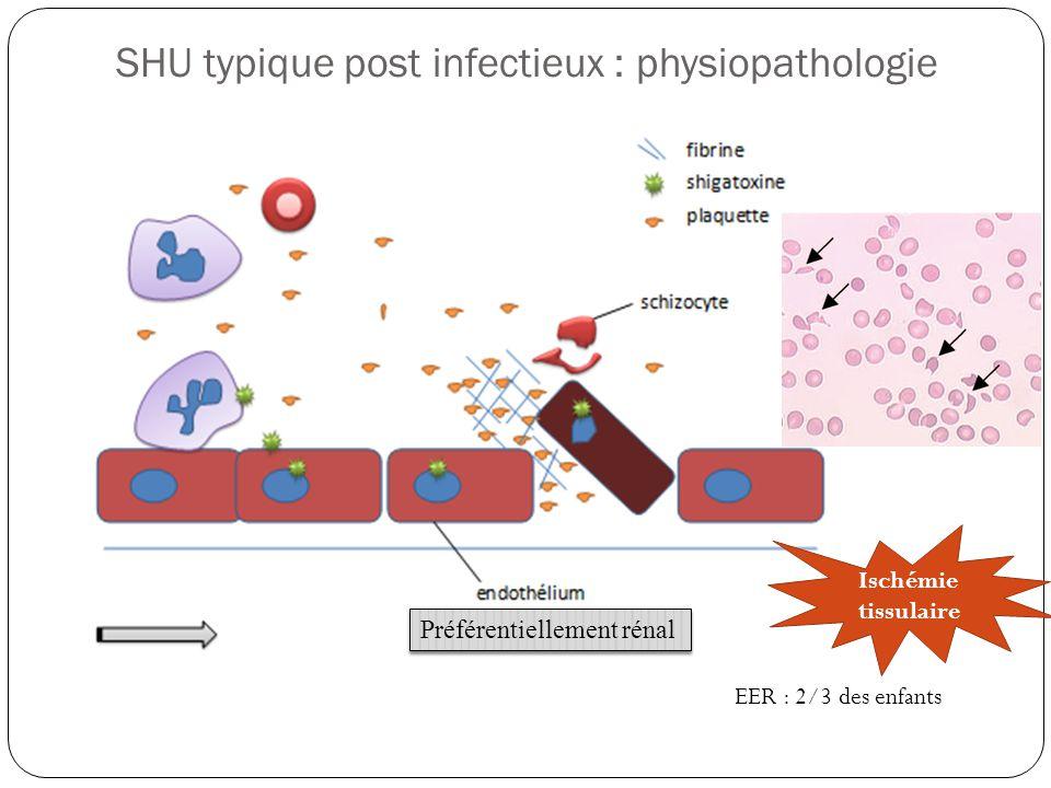 SHU typique post infectieux : physiopathologie Préférentiellement rénal EER : 2/3 des enfants Ischémie tissulaire