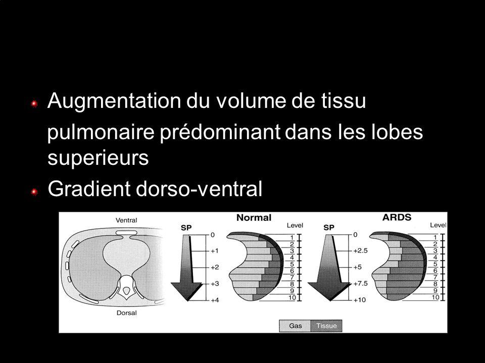 Augmentation du volume de tissu pulmonaire prédominant dans les lobes superieurs Gradient dorso-ventral GATTINONI et al., AJRCCM 2001,