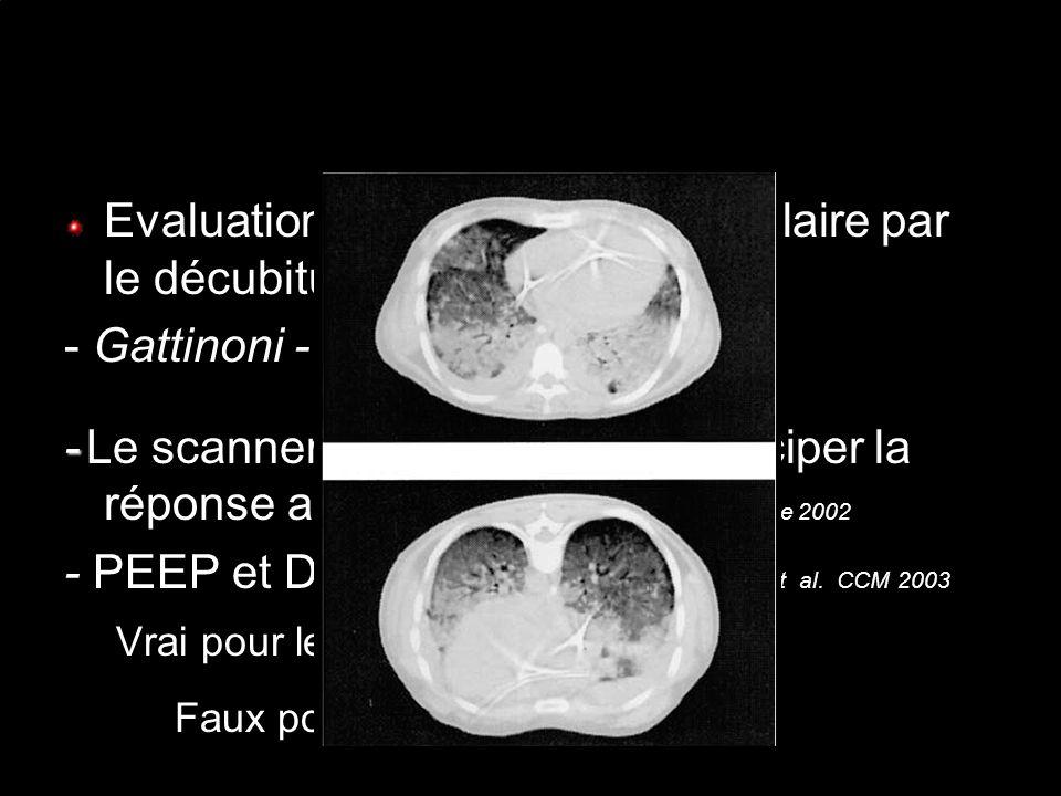 Evaluation du recrutement alvéolaire par le décubitus ventral - Gattinoni - Richard - - Le scanner ne permet pas danticiper la réponse au DV PAPAZIAN