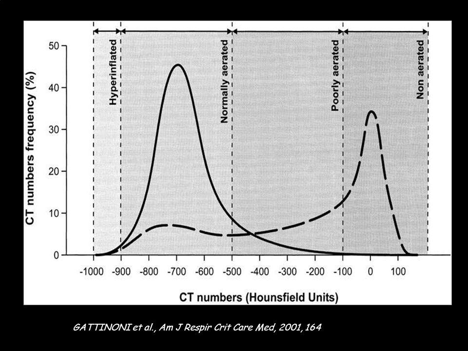 Quatre categories d'aeration. Normale - 900 à - 500 HU. Hyperinflation < - 900 HU. Peu aérée - 100 à - 500 HU. Pas aérée > - 100 HU GATTINONI et al.,