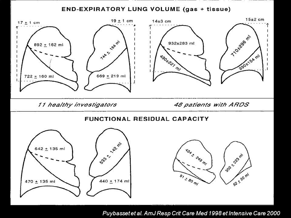 Corrélation physiopathlogique Diminution du volume pulmonaire Puybasset et al. AmJ Resp Crit Care Med 1998 et Intensive Care 2000