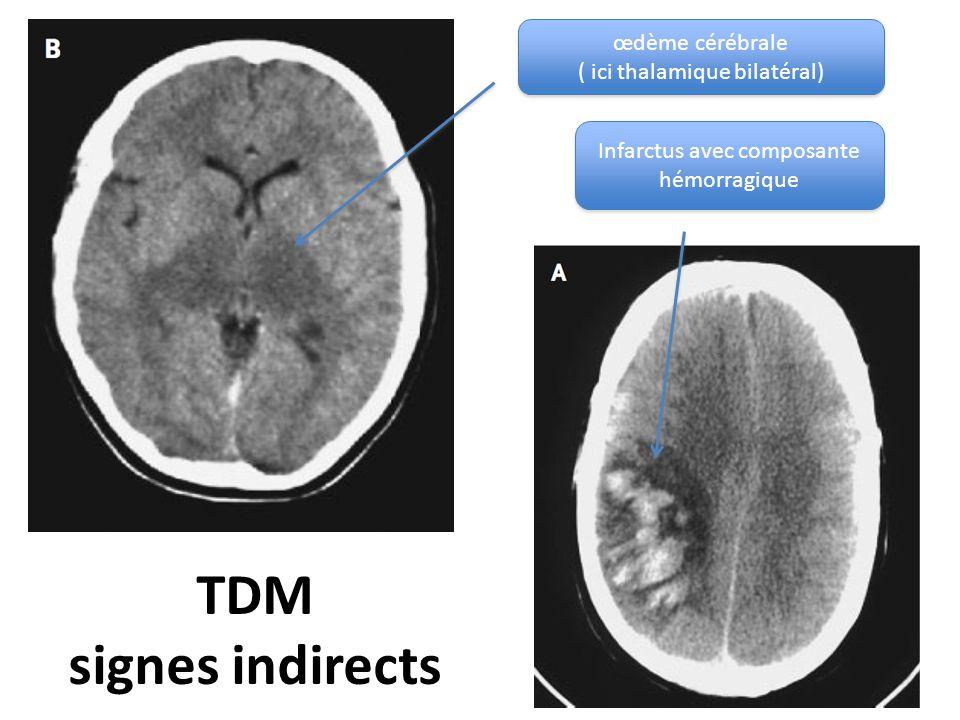 TDM signes indirects œdème cérébrale ( ici thalamique bilatéral) œdème cérébrale ( ici thalamique bilatéral) Infarctus avec composante hémorragique