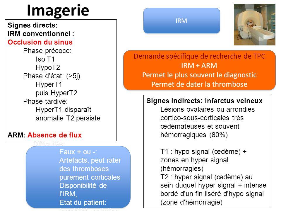 Imagerie IRM Demande spécifique de recherche de TPC IRM + ARM Permet le plus souvent le diagnostic Permet de dater la thrombose Demande spécifique de recherche de TPC IRM + ARM Permet le plus souvent le diagnostic Permet de dater la thrombose Signes directs: IRM conventionnel : Occlusion du sinus Phase précoce: Iso T1 HypoT2 Phase détat: (>5j) HyperT1 puis HyperT2 Phase tardive: HyperT1 disparaît anomalie T2 persiste ARM: Absence de flux Signes indirects: infarctus veineux Lésions ovalaires ou arrondies cortico-sous-corticales très œdémateuses et souvent hémorragiques (80%) T1 : hypo signal (œdème) + zones en hyper signal (hémorragies) T2 : hyper signal (œdème) au sein duquel hyper signal + intense bordé d un fin liséré d hypo signal (zone d hémorragie) Difficultés: Faux + ou -: Artefacts, peut rater des thromboses purement corticales Disponibilité de lIRM, Etat du patient: instabilité, agitation Difficultés: Faux + ou -: Artefacts, peut rater des thromboses purement corticales Disponibilité de lIRM, Etat du patient: instabilité, agitation
