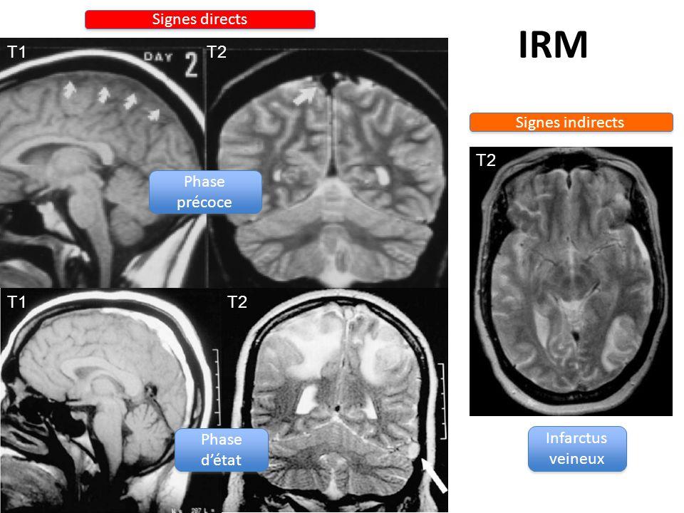 T1 T2 Phase précoce Phase détat IRM Infarctus veineux Signes directs Signes indirects T2