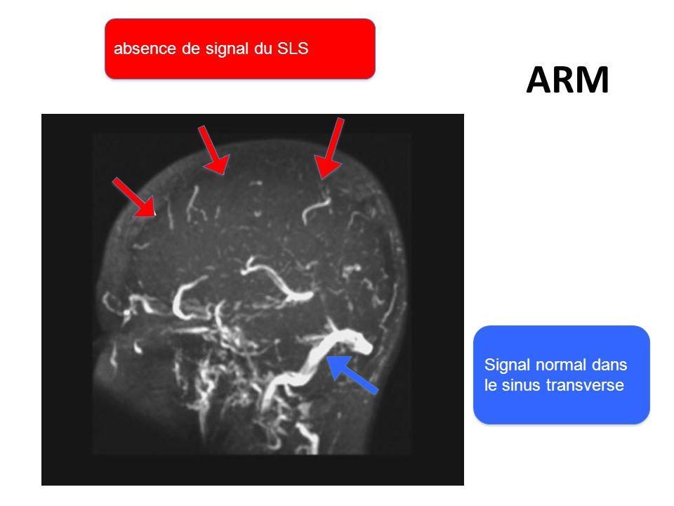 ARM absence de signal du SLS Signal normal dans le sinus transverse