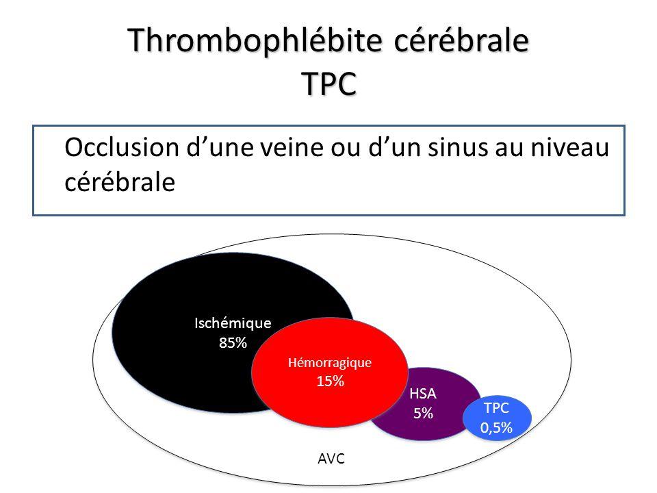 Thrombophlébite cérébrale TPC Occlusion dune veine ou dun sinus au niveau cérébrale AVC Ischémique 85% Ischémique 85% HSA 5% HSA 5% Hémorragique 15% Hémorragique 15% TPC 0,5% TPC 0,5%