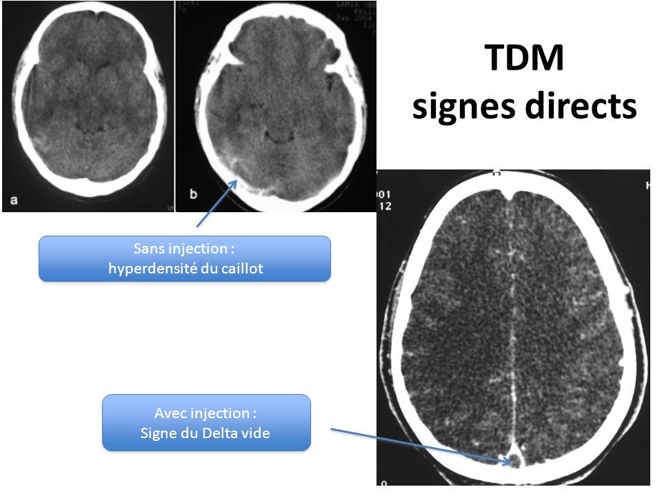 TDM signes directs Sans injection : hyperdensité du caillot Sans injection : hyperdensité du caillot Avec injection : Signe du Delta vide Avec injection : Signe du Delta vide