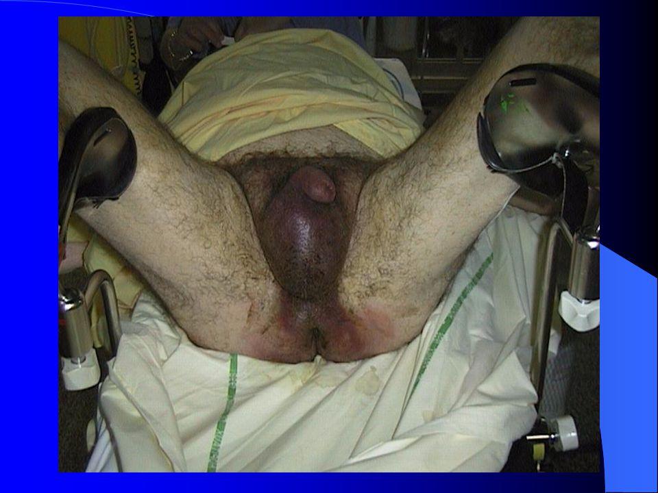 Evolution Extension souvent importante: fascia connectés – région périanale – région inguinale, paroi abdominale, flancs – souvent préservés: testicules, corps caverneux, anorectum Rarement myonécrose Retentissement général: sepsis, choc septique Mortalité: 20 à 50% selon les séries