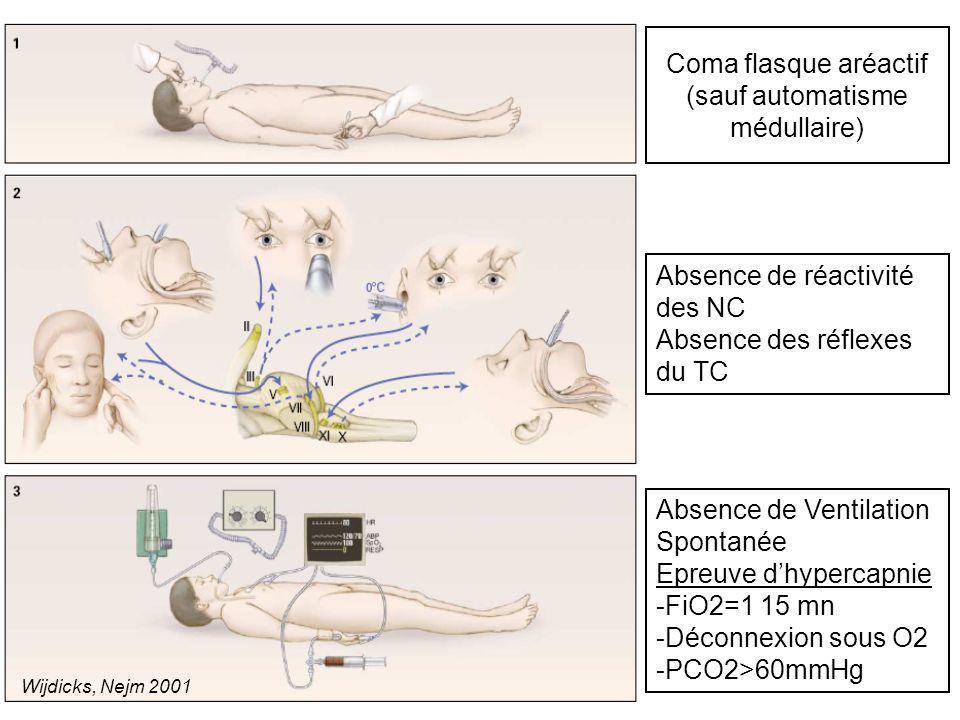 Coma flasque aréactif (sauf automatisme médullaire) Absence de réactivité des NC Absence des réflexes du TC Absence de Ventilation Spontanée Epreuve d