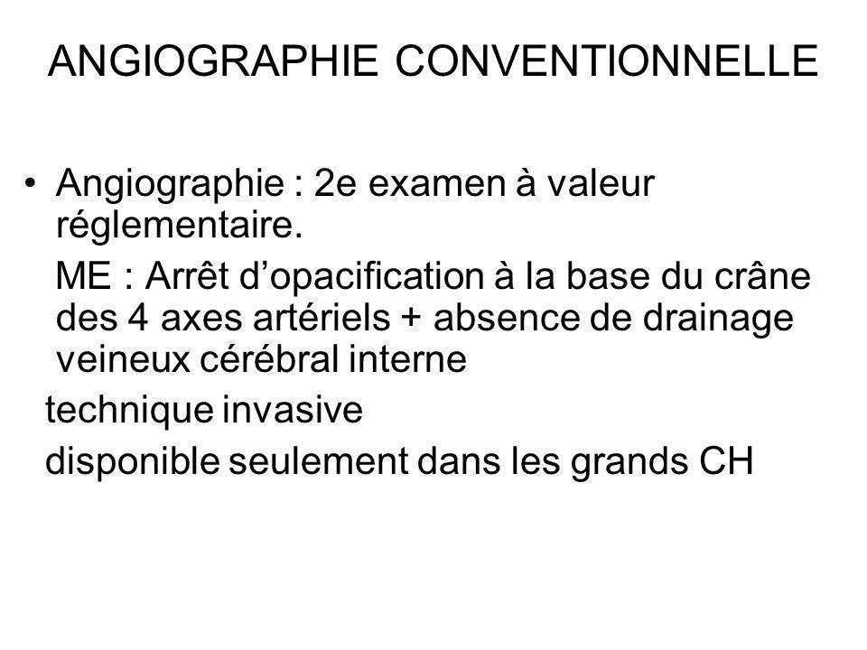 ANGIOGRAPHIE CONVENTIONNELLE Angiographie : 2e examen à valeur réglementaire. ME : Arrêt dopacification à la base du crâne des 4 axes artériels + abse