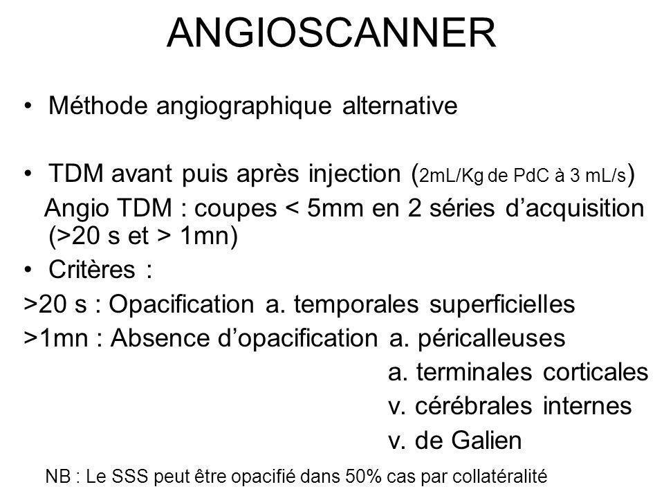 ANGIOSCANNER Méthode angiographique alternative TDM avant puis après injection ( 2mL/Kg de PdC à 3 mL/s ) Angio TDM : coupes 20 s et > 1mn) Critères :