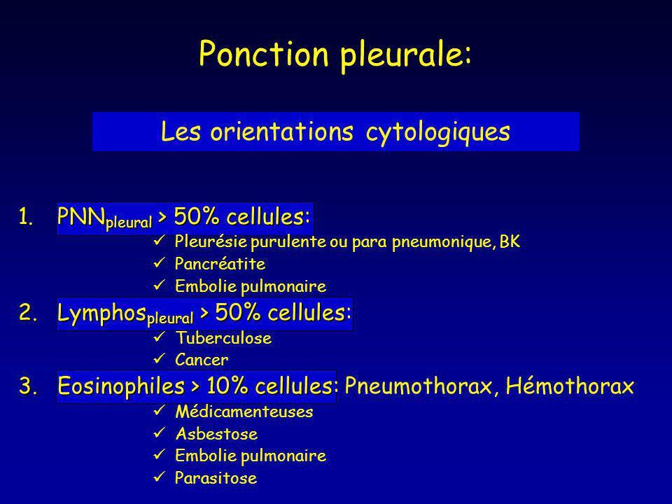 1.PNN pleural > 50% cellules: Pleurésie purulente ou para pneumonique, BK Pancréatite Embolie pulmonaire 2.Lymphos pleural > 50% cellules 2.Lymphos pl