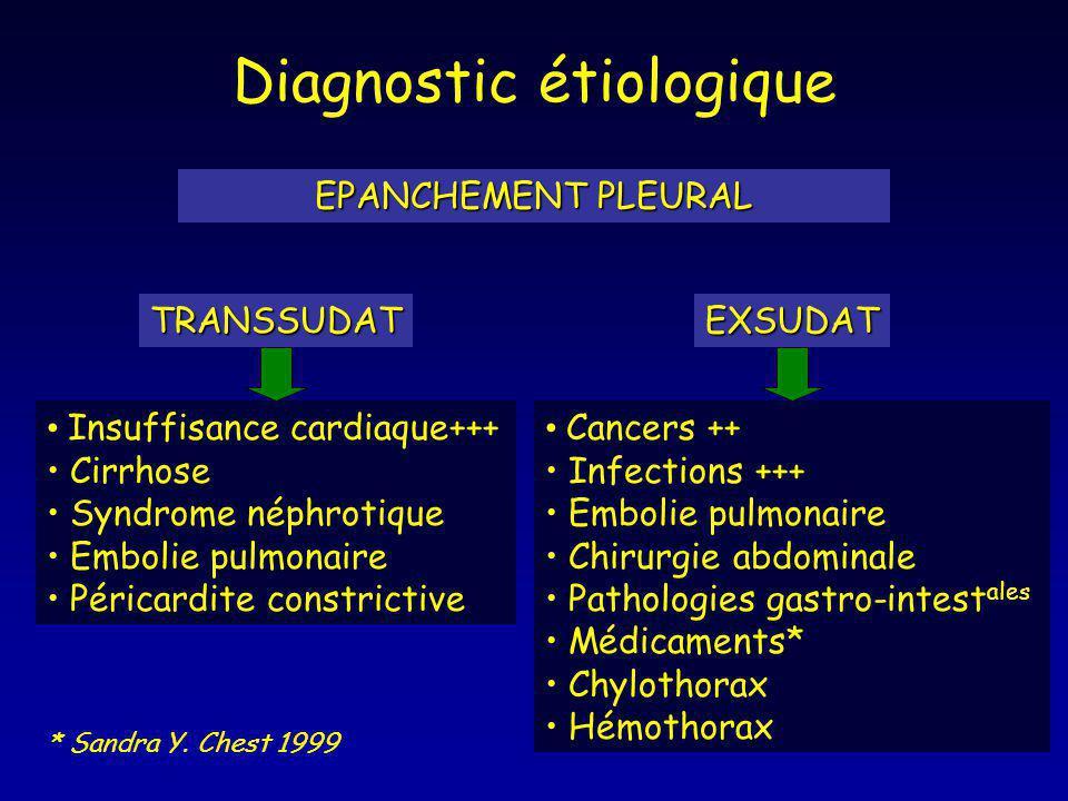 Diagnostic étiologique EPANCHEMENT PLEURAL TRANSSUDATEXSUDAT Insuffisance cardiaque+++ Cirrhose Syndrome néphrotique Embolie pulmonaire Péricardite co