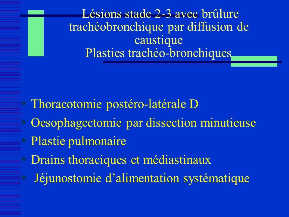 Lésions stade 2-3 avec brûlure trachéobronchique par diffusion de caustique Plasties trachéo-bronchiques Thoracotomie postéro-latérale D Oesophagectom