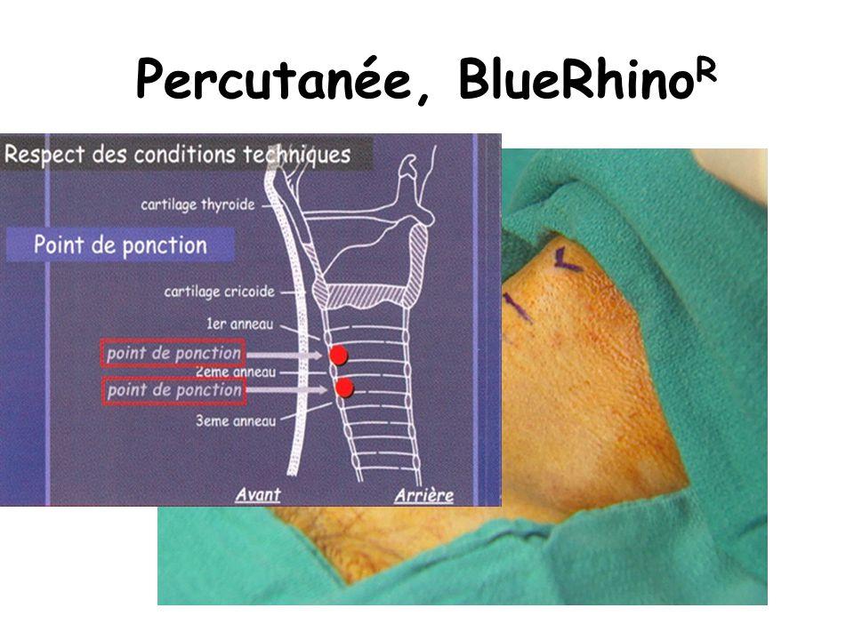 Percutanée, BlueRhino R