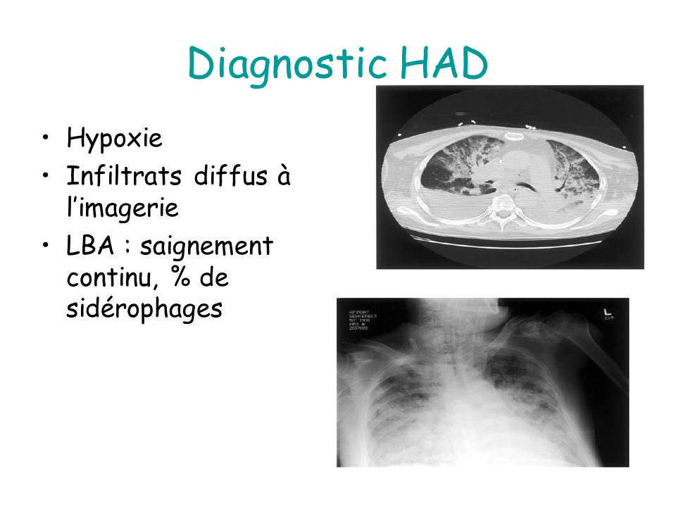 Diagnostic HAD Hypoxie Infiltrats diffus à limagerie LBA : saignement continu, % de sidérophages