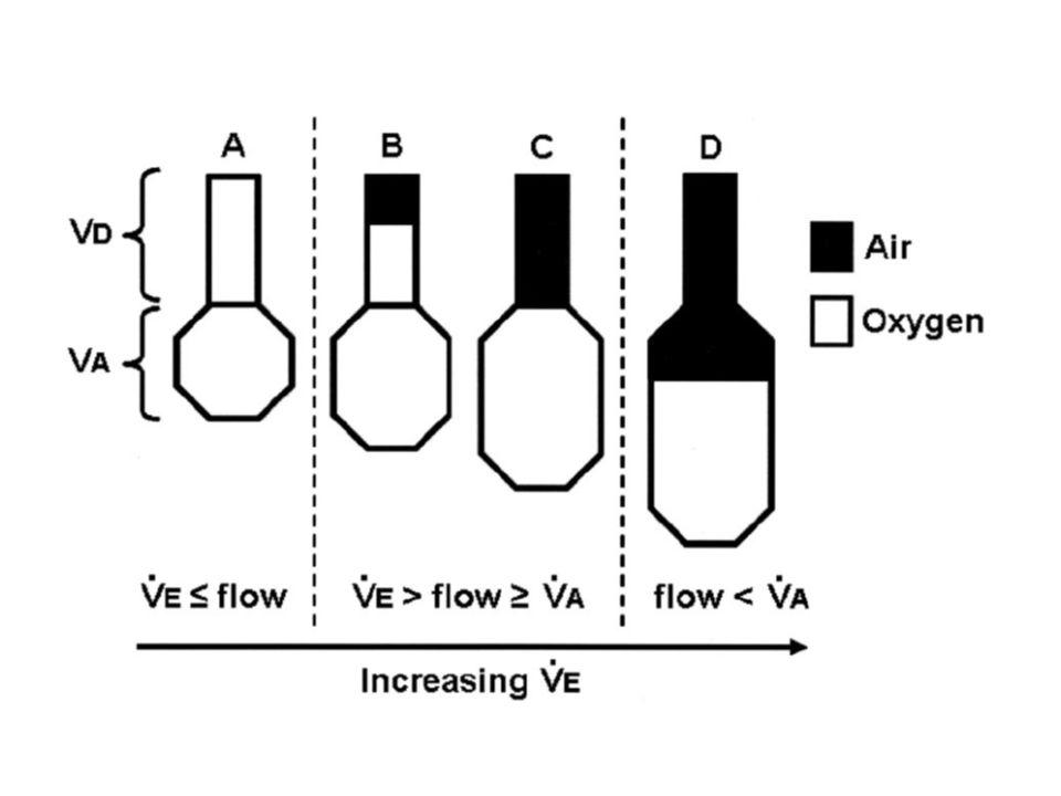Objectifs Comparer FiO ² obtenues MHCSGD MHC Vs SGD VsVenturi à différents volumes minute à différents débits dOxygène