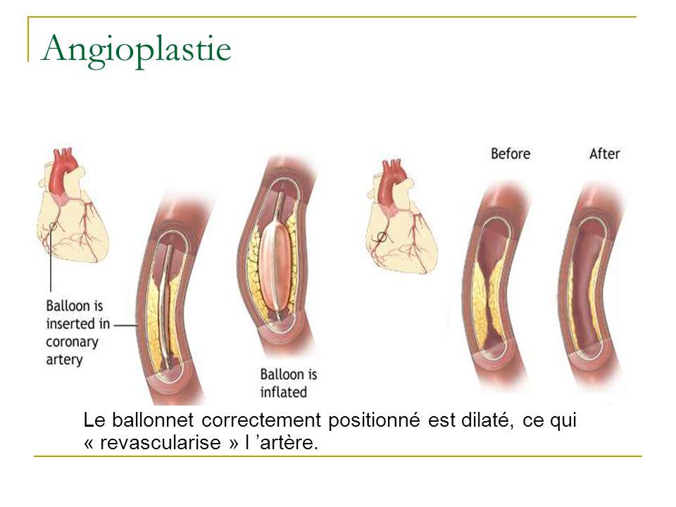 Le ballonnet correctement positionné est dilaté, ce qui « revascularise » l artère. Angioplastie