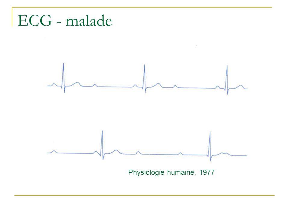 ECG - malade Physiologie humaine, 1977