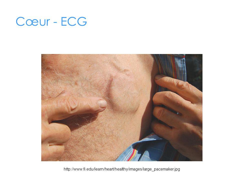 Cœur - ECG http://www.fi.edu/learn/heart/healthy/images/large_pacemaker.jpg