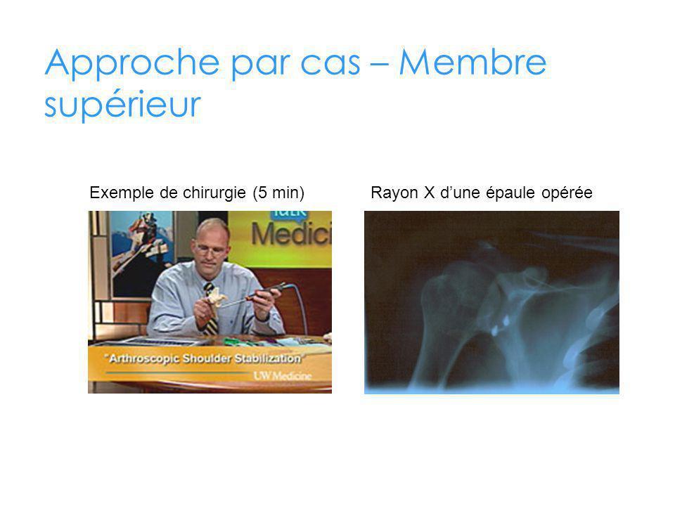 Approche par cas – Membre supérieur Rayon X dune épaule opéréeExemple de chirurgie (5 min)