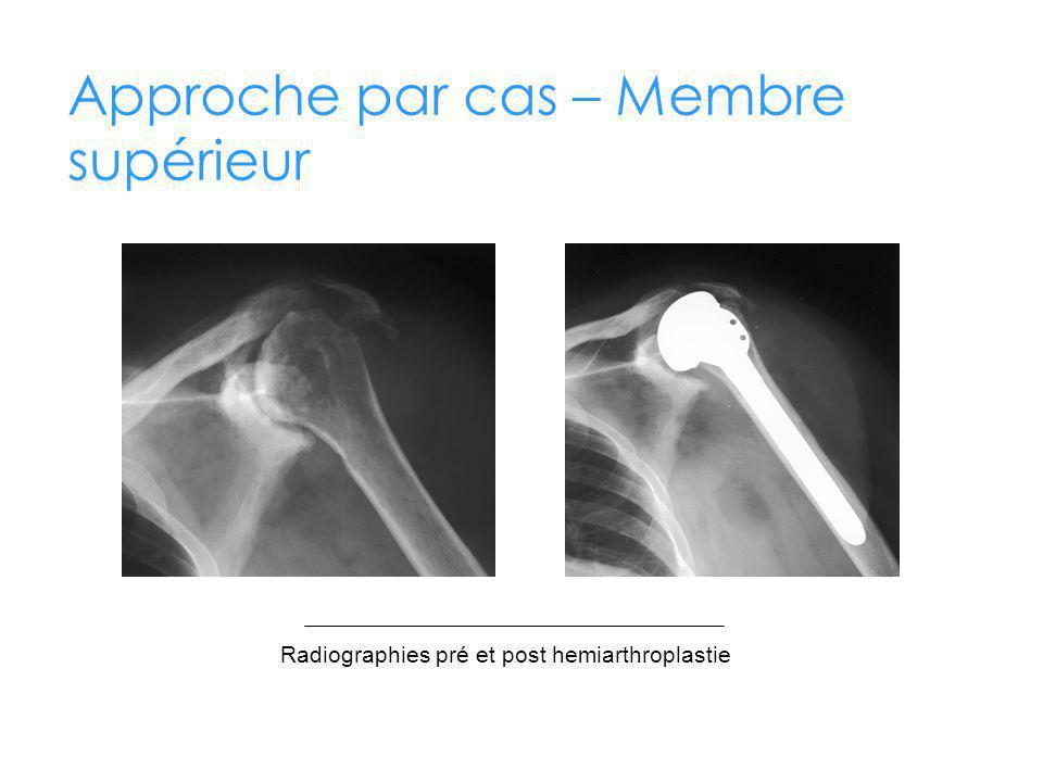 Approche par cas – Membre supérieur Radiographies pré et post hemiarthroplastie