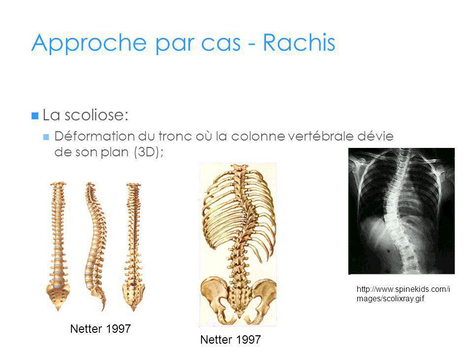 Approche par cas - Rachis La scoliose: Déformation du tronc où la colonne vertébrale dévie de son plan (3D); http://www.spinekids.com/i mages/scolixray.gif Netter 1997