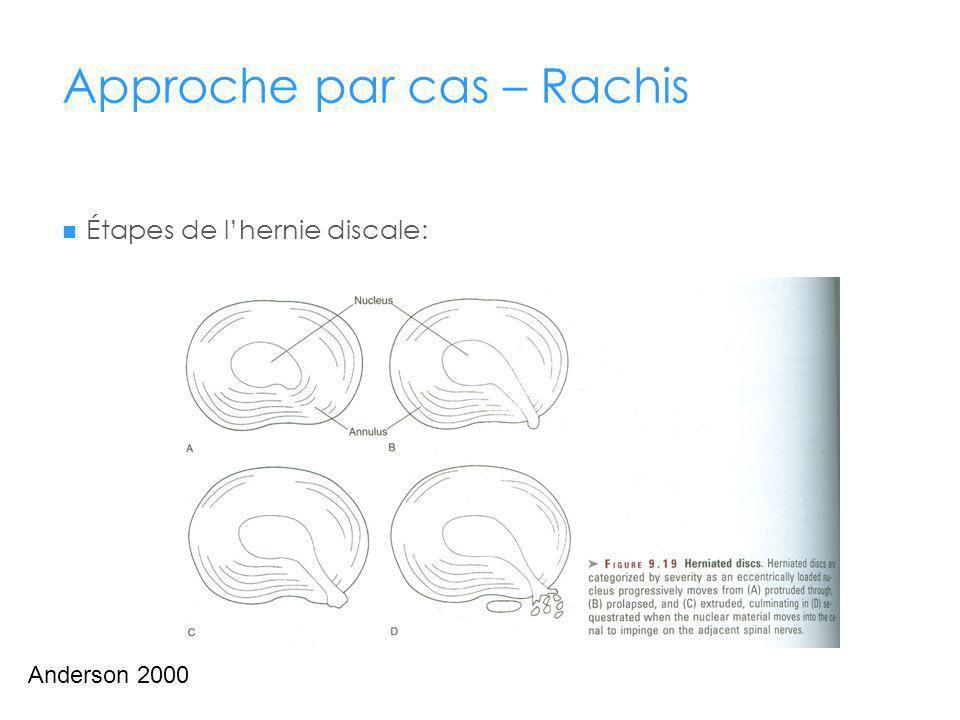 Approche par cas – Rachis Étapes de lhernie discale: Anderson 2000