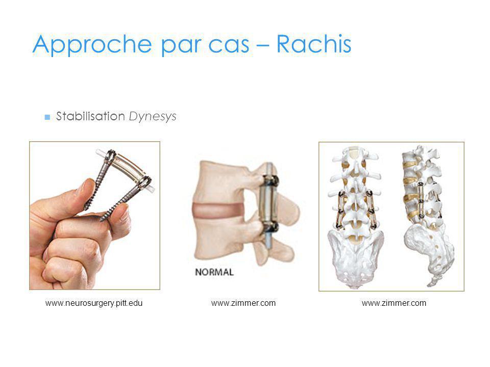 Approche par cas – Rachis Stabilisation Dynesys www.neurosurgery.pitt.eduwww.zimmer.com