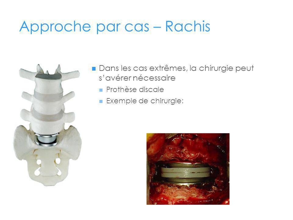 Approche par cas – Rachis Dans les cas extrêmes, la chirurgie peut savérer nécessaire Prothèse discale Exemple de chirurgie: