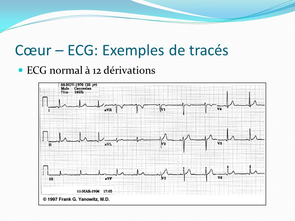 Cœur – ECG: Exemples de tracés ECG normal à 12 dérivations