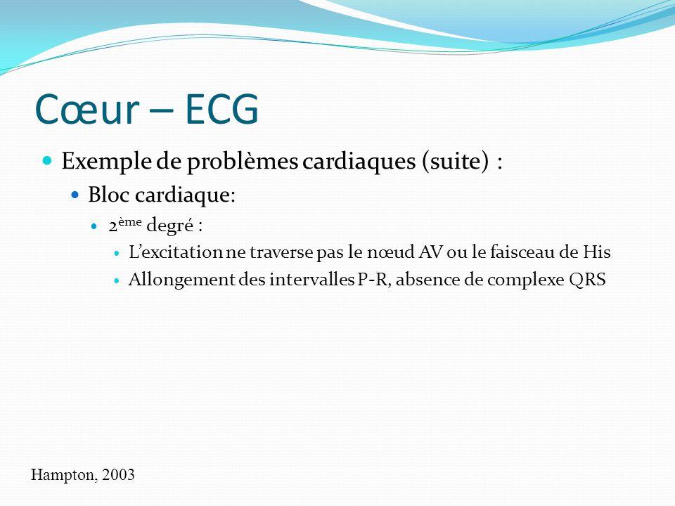 Cœur – ECG Exemple de problèmes cardiaques (suite) : Bloc cardiaque: 2 ème degré : Lexcitation ne traverse pas le nœud AV ou le faisceau de His Allong