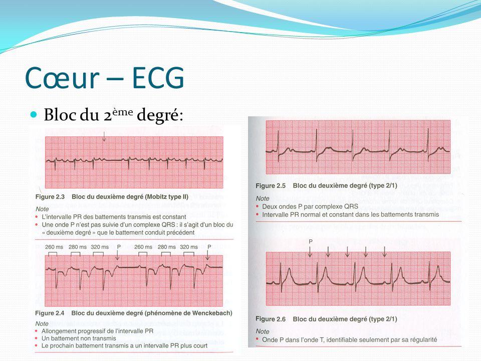 Cœur – ECG Bloc du 2 ème degré: