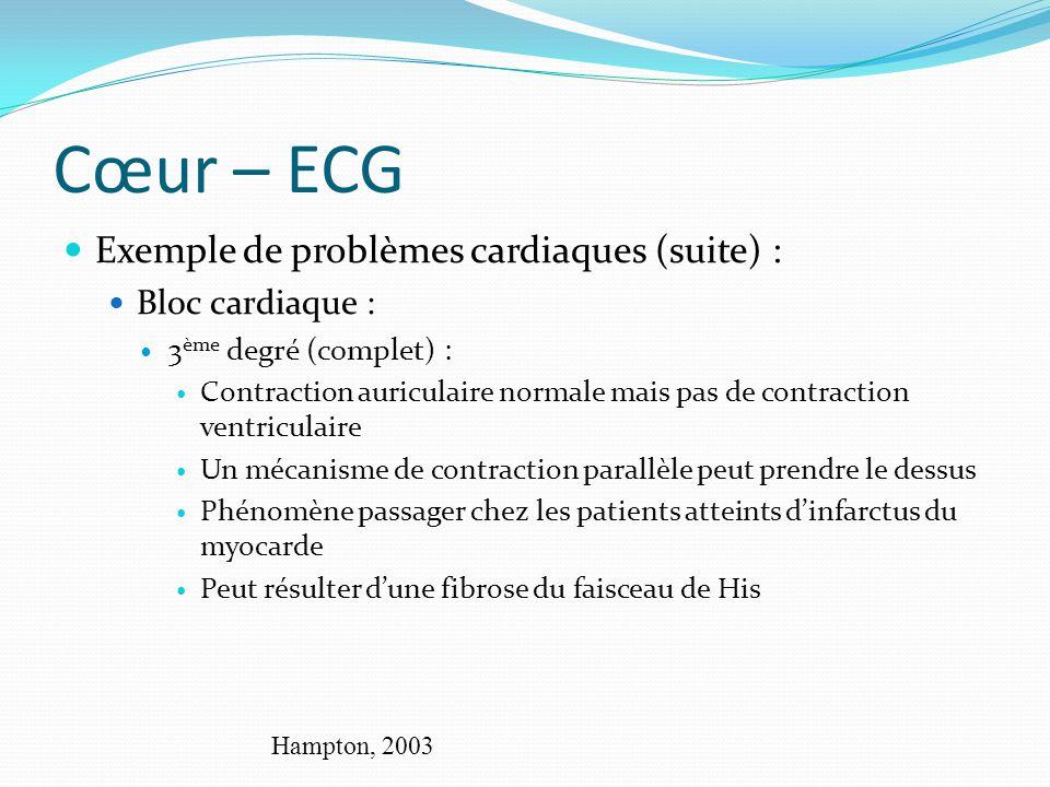 Cœur – ECG Exemple de problèmes cardiaques (suite) : Bloc cardiaque : 3 ème degré (complet) : Contraction auriculaire normale mais pas de contraction