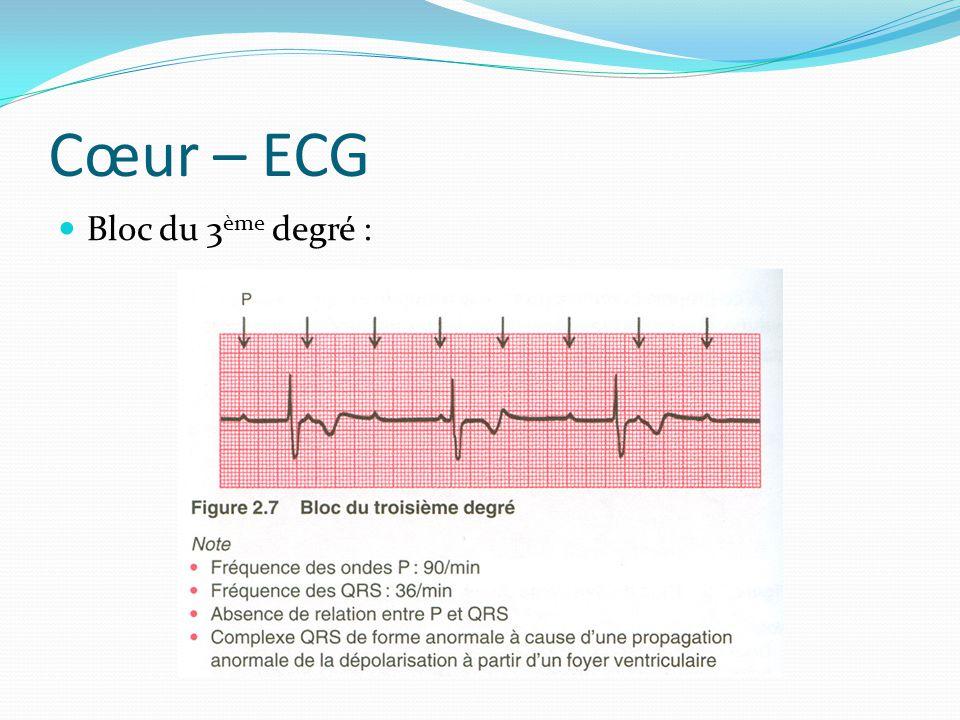 Cœur – ECG Bloc du 3 ème degré :