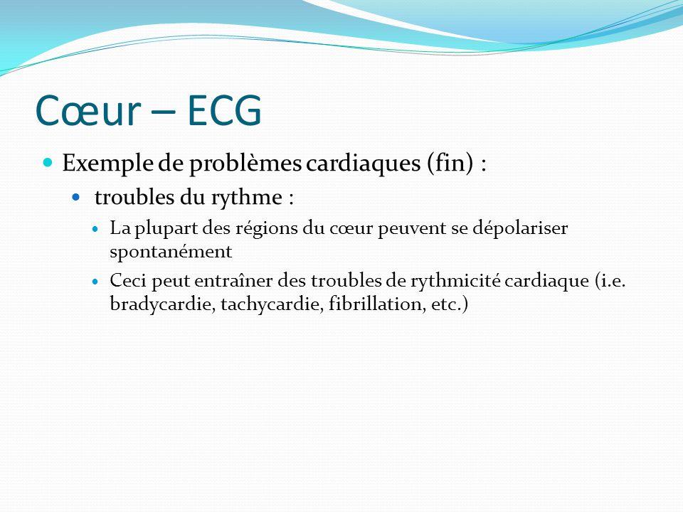 Cœur – ECG Exemple de problèmes cardiaques (fin) : troubles du rythme : La plupart des régions du cœur peuvent se dépolariser spontanément Ceci peut e