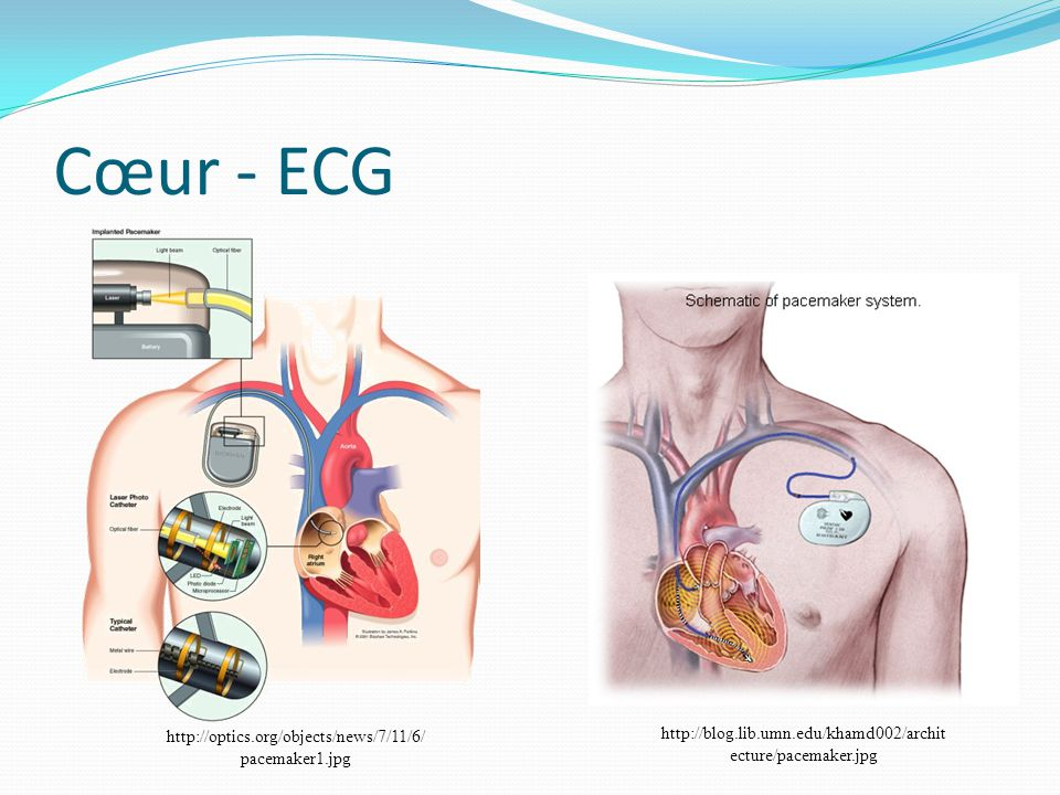 Cœur - ECG http://optics.org/objects/news/7/11/6/ pacemaker1.jpg http://blog.lib.umn.edu/khamd002/archit ecture/pacemaker.jpg