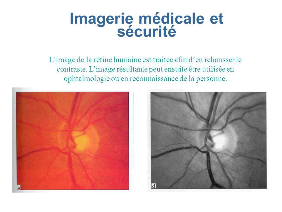 Imagerie médicale et sécurité Limage de la rétine humaine est traitée afin den rehausser le contraste.