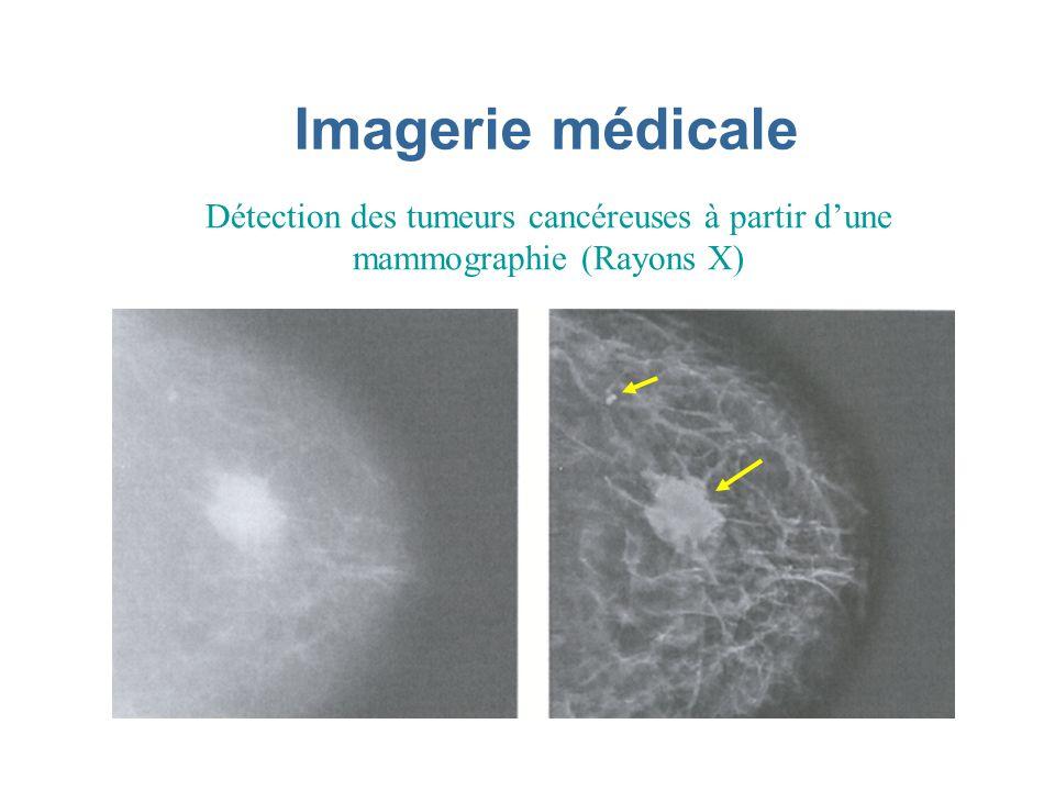 Imagerie médicale Détection des tumeurs cancéreuses à partir dune mammographie (Rayons X)