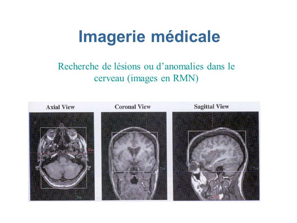 Imagerie médicale Recherche de lésions ou danomalies dans le cerveau (images en RMN)
