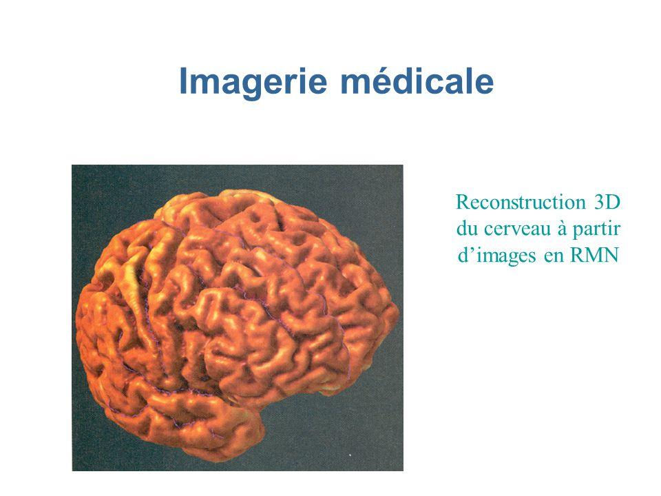 Imagerie médicale Reconstruction 3D du cerveau à partir dimages en RMN