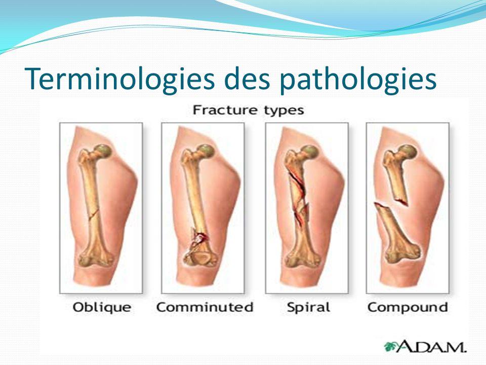 Terminologies des pathologies Osseuses : Fracture : Bris dun os résultant dun choc violent (direct ou torsion) excédent la résistance osseuse : Ouvert