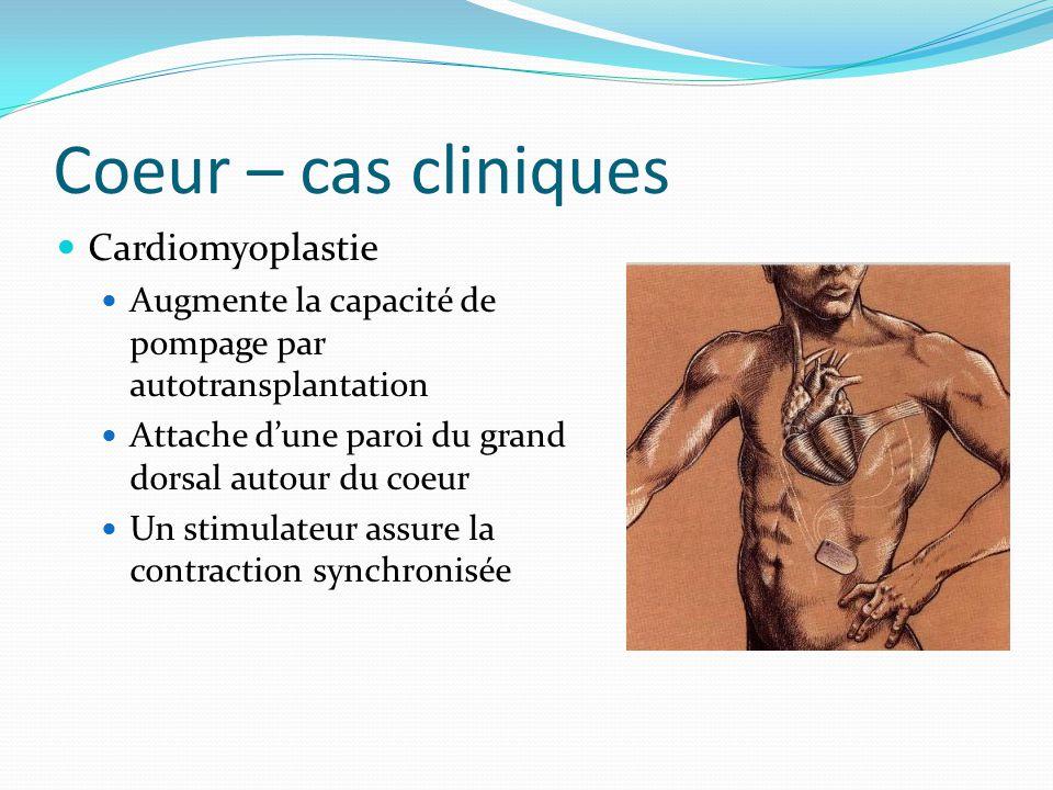 Coeur – cas cliniques Cardiomyoplastie Augmente la capacité de pompage par autotransplantation Attache dune paroi du grand dorsal autour du coeur Un s