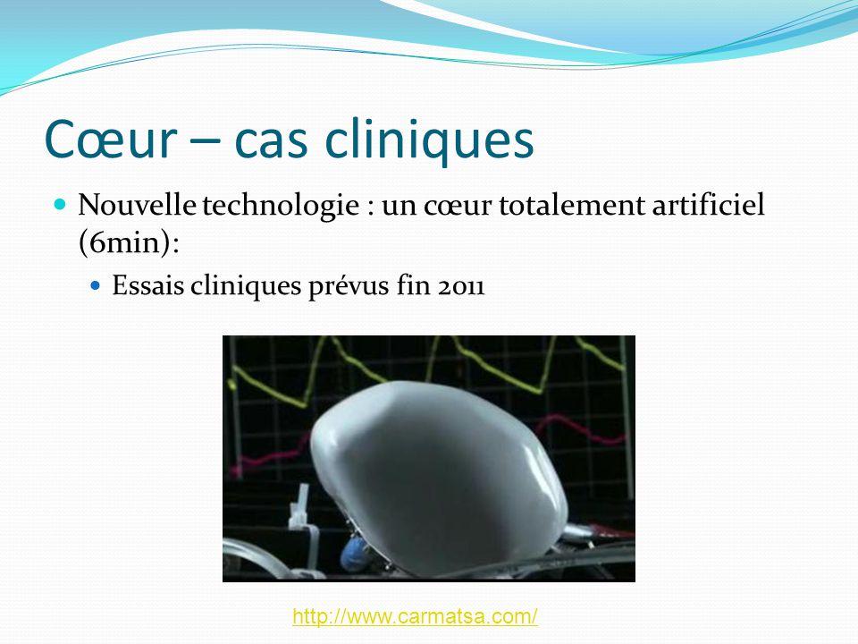 Cœur – cas cliniques Nouvelle technologie : un cœur totalement artificiel (6min): Essais cliniques prévus fin 2011 http://www.carmatsa.com/