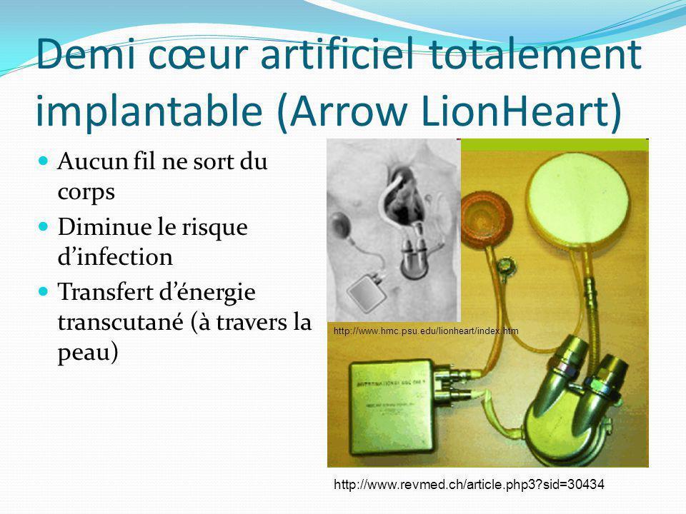Demi cœur artificiel totalement implantable (Arrow LionHeart) Aucun fil ne sort du corps Diminue le risque dinfection Transfert dénergie transcutané (