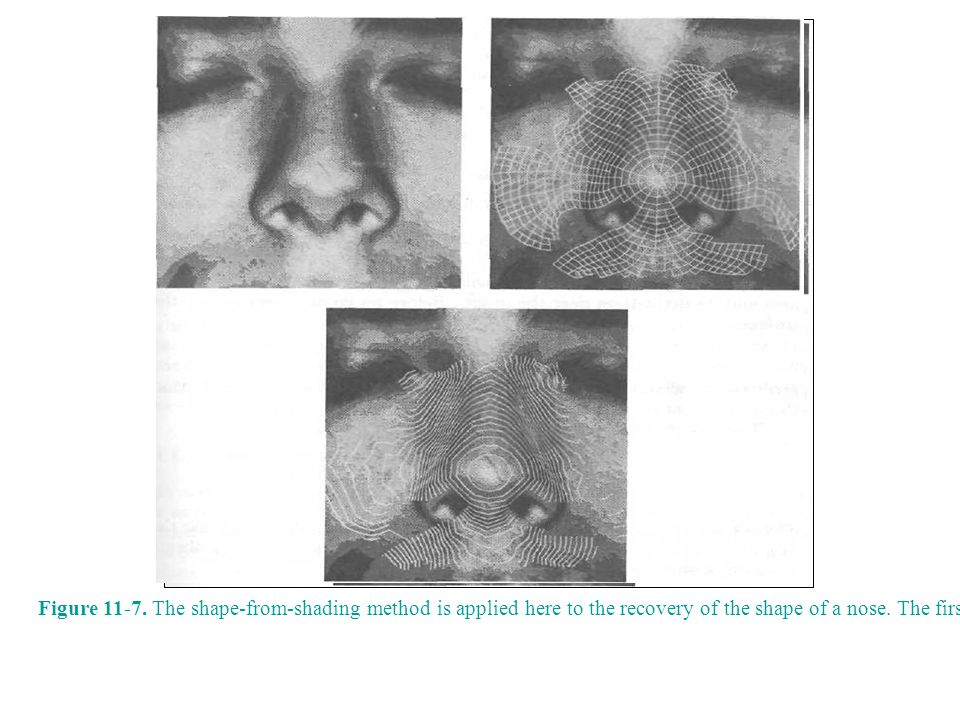 Figure 11-7. The shape-from-shading method is applied here to the recovery of the shape of a nose. The first picture shows the (crudely quantized) gra