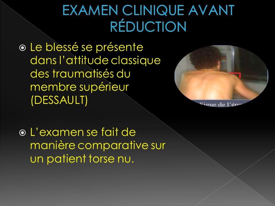 Le blessé se présente dans lattitude classique des traumatisés du membre supérieur (DESSAULT) Lexamen se fait de manière comparative sur un patient to