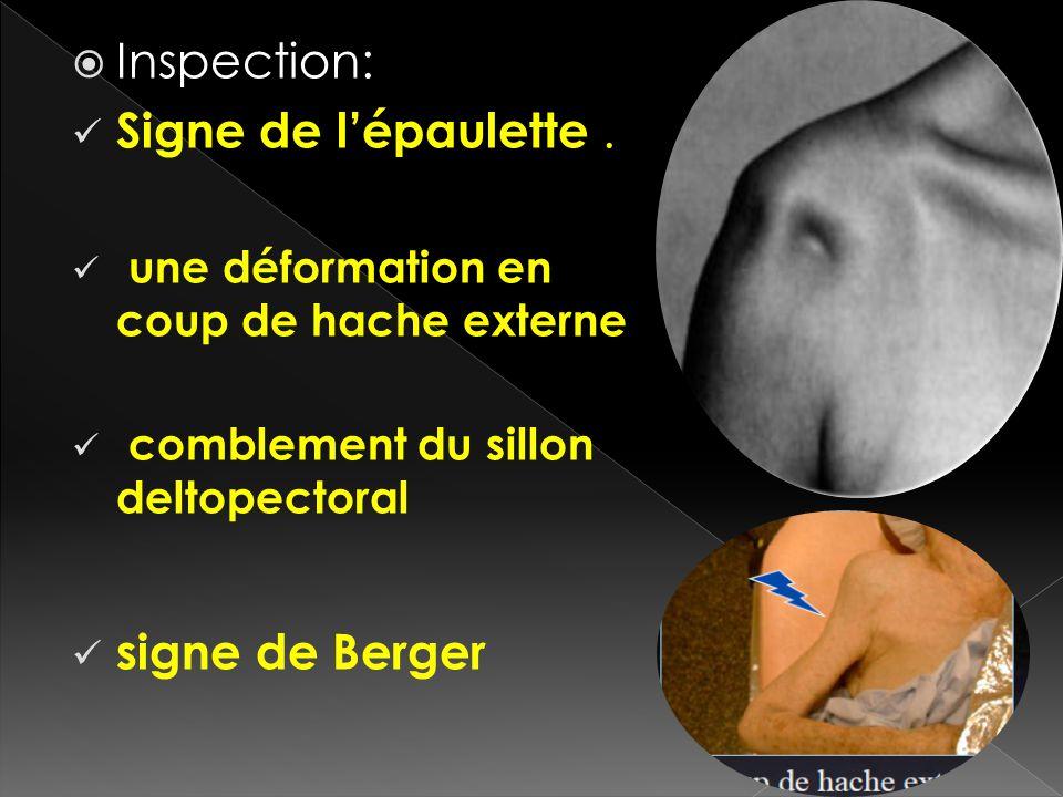 Inspection: Signe de lépaulette. une déformation en coup de hache externe comblement du sillon deltopectoral signe de Berger